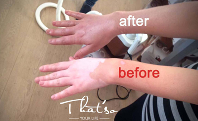 vitiligo_1.jpg